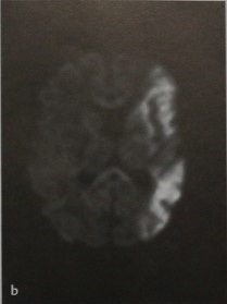 Снимки МРТ и КТ. Ишемический инсульт у детей