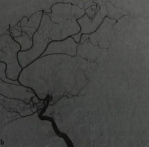 Снимки МРТ и КТ.  Болезнь мойя-мойя