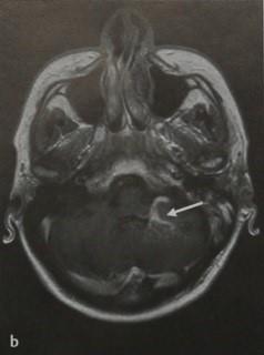 Снимки МРТ и КТ. Венозная ангиома