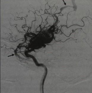 Снимки МРТ и КТ. Церебральная артериовенозная мальформация