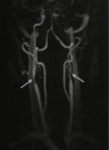 Снимки МРТ и КТ. Стеноз экстракраниального сегмента сонной артерии