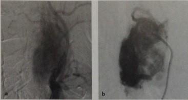 Снимки МРТ и КТ. Опухоль каротидного гломуса