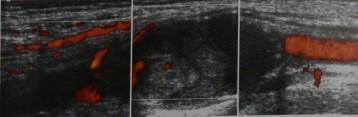 Снимки МРТ и КТ. Аневризмы периферических артерий