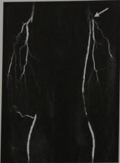 Снимки МРТ и КТ. Окклюзирующие заболевания периферических артерий