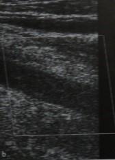 Снимки МРТ и КТ. Тромбоз глубоких вен малого таза и нижних конечнос