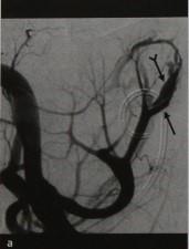 Снимки МРТ и КТ. Артериовенозная фистула после биопсии почки