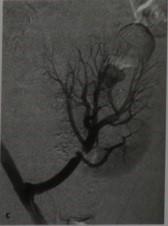 Снимки МРТ и КТ.  Посттрансплантационный стеноз почечной артерии