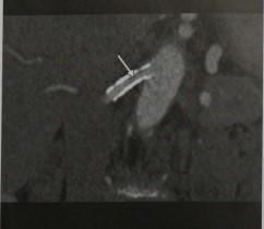 Снимки МРТ и КТ.  Рестеноз почечной артерии после стентирования