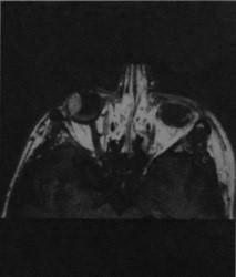 Снимки МРТ и КТ. Меланома сетчатки