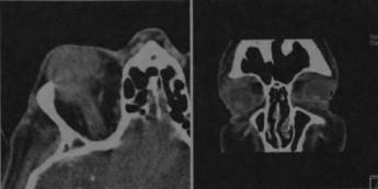 Снимки МРТ и КТ. Лимфома глазницы