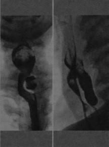 Снимки МРТ и КТ. Дивертикул Ценкера