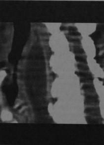 Снимки МРТ и КТ. Предпозвоночный абсцесс шейного отдела позвоночник