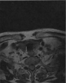 Аденома паращитовидной железы
