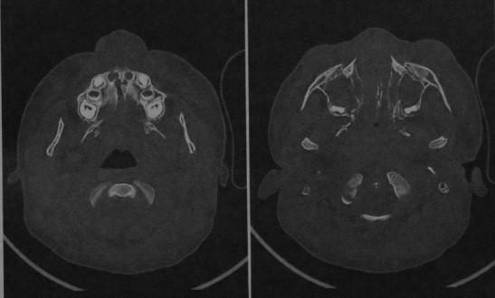 Снимки МРТ и КТ. Переломы костей средней зоны лица