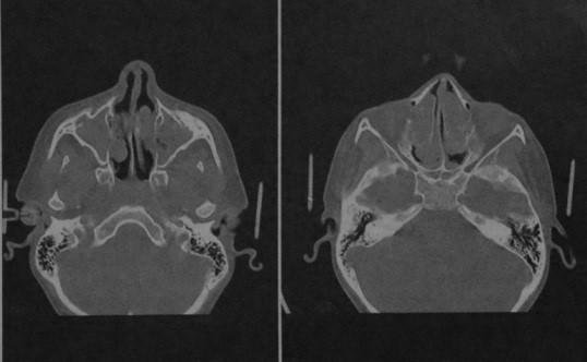 Снимки МРТ и КТ. Синусит, полипоз носа