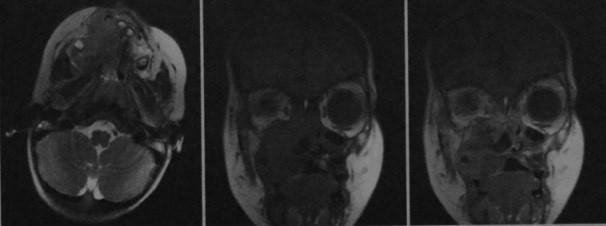 Снимки МРТ и КТ. Неходжкинская лимфома