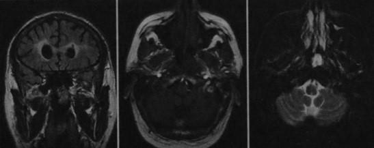 Снимки МРТ и КТ. Ретроназальный полип