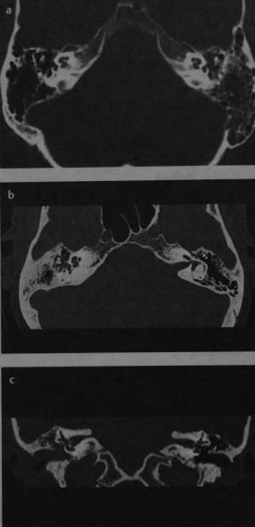 Снимки МРТ и КТ. Холестеатома пирамидки височной кости