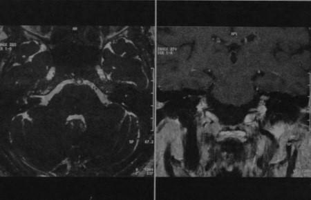 Снимки МРТ и КТ. Поражение лицевого нерва