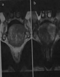 Снимки МРТ и КТ. Рак языка