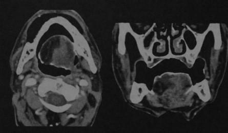 Снимки МРТ и КТ. Односторонняя атрофия мышц