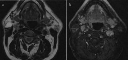 Снимки МРТ и КТ. Опухоль Уортина