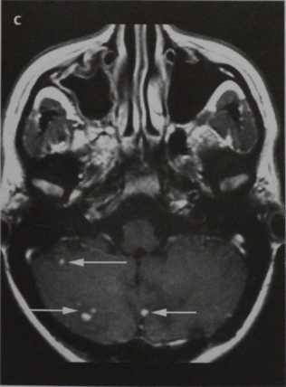 Снимки МРТ и КТ. Синдром Гиппеля-Линдау
