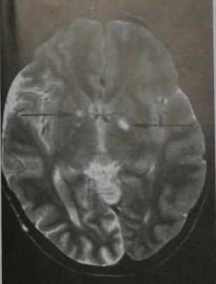 Снимки МРТ и КТ. Нейрофиброматоз I типа (болезнь Реклингхаузена)