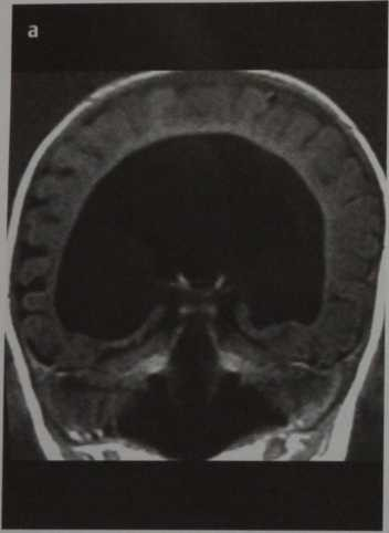 Снимки МРТ и КТ. Голопрозэнцефалия