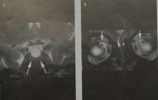 Снимки МРТ и КТ. Псевдоопухоль головного мозга