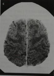 Снимки МРТ и КТ. Идиопатическая нормотензивная гидроцефалия