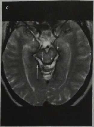 Снимки МРТ и КТ. Поверхностный сидероз головного мозга
