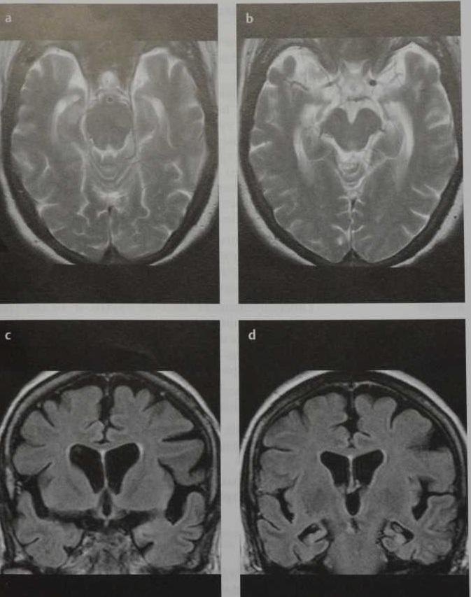 Снимки МРТ и КТ. Болезнь Альцгеймера
