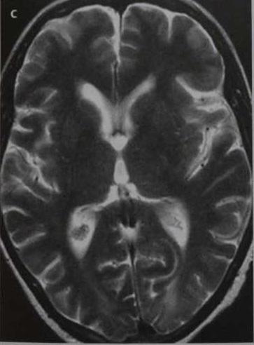 Снимки МРТ и КТ. Обратимая лейкоэнцефалопатия вертебробазилярного б