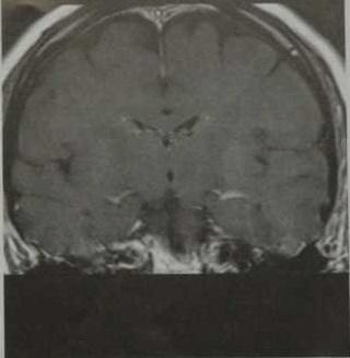 Снимки МРТ и КТ. Реактивное контрастное усиление мозговых оболочек