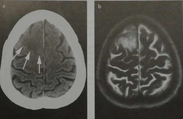 Снимки МРТ и КТ. Астроцитома низкой степени анаплазии