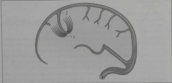 Снимки МРТ и КТ. Венозная дисплазия