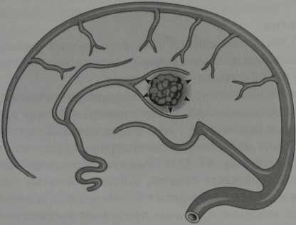 Снимки МРТ и КТ. Кавернозная гемангиома