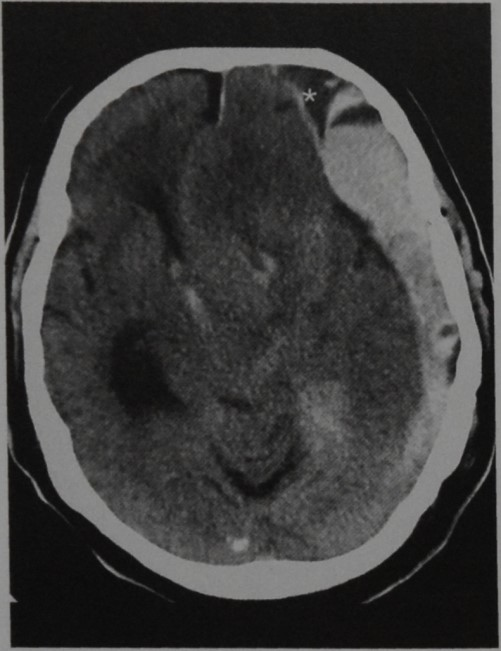 Снимки МРТ и КТ. Субдуральная гематома (СДГ)