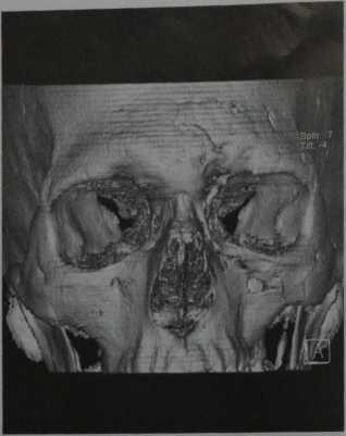 Снимки МРТ и КТ.  Перелом костей черепа