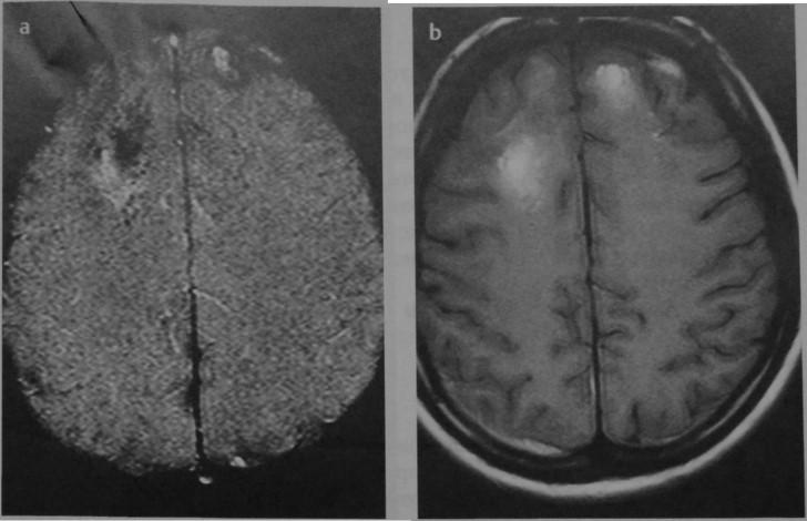 Снимки МРТ и КТ. Ушиб головного мозга