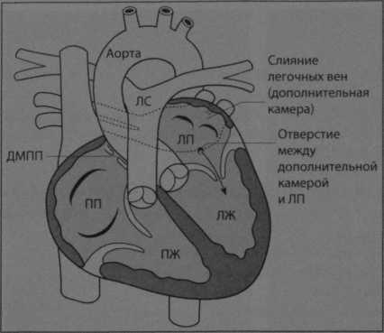 Снимки МРТ и КТ. Трехпредсердное сердце
