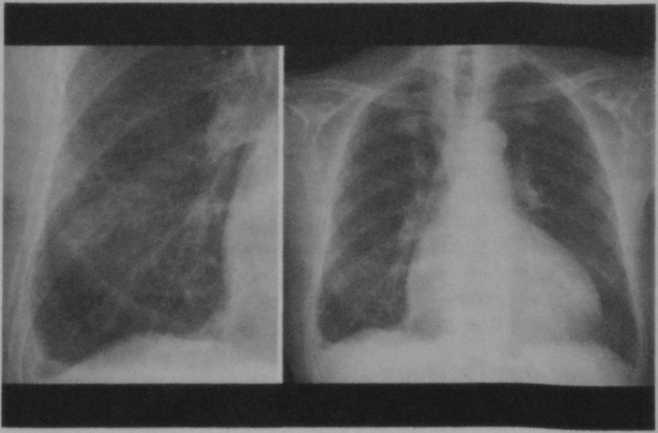 Снимки МРТ и КТ. Синдром гипоплазии левых отделов сердца