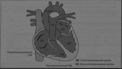 Снимки МРТ и КТ. Аномалия Эбштейна