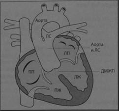 Снимки МРТ и КТ. Артериальный ствол