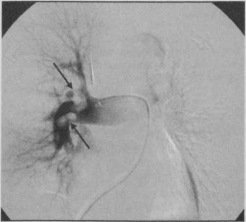 Снимки МРТ и КТ. Острая легочная гипертензия, тромбоэмболия легочны