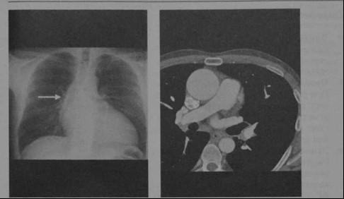 Снимки МРТ и КТ. Эктазия аорты