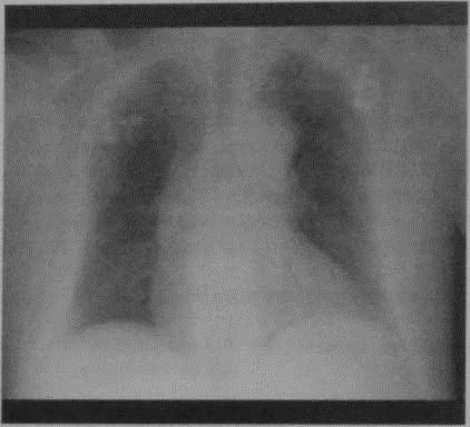 Снимки МРТ и КТ. Постинфарктный кардиосклероз