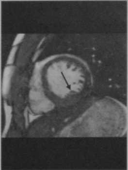 Снимки МРТ и КТ. Саркоидоз