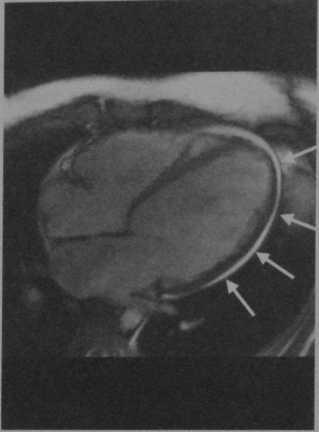 Снимки МРТ и КТ. Токсическая кардиомиопатия